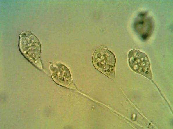Инфузории Сувойки (Vorticella) в аквариуме фото