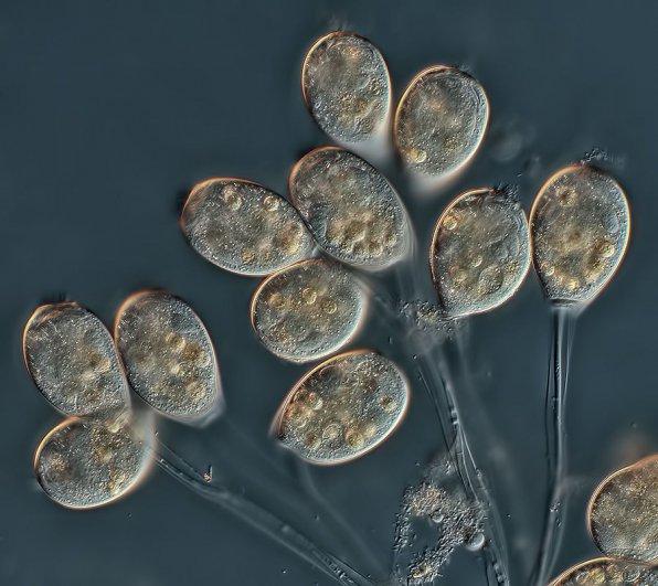 Инфузория круглоресничная (Peritricha) в аквариуме фото